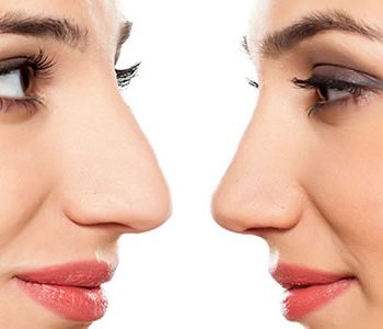 Rinoplastia: Un cambio radical en tu rostro